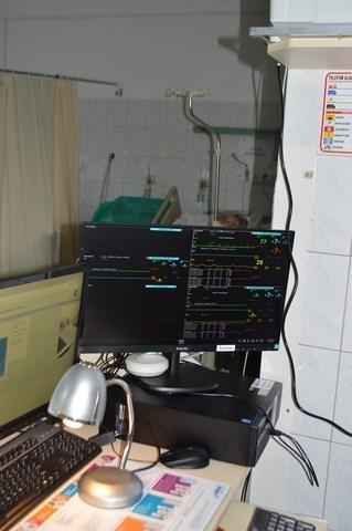 1 Nowy sprzęt kardiologiczny w Zamojskim Szpitalu Niepublicznym